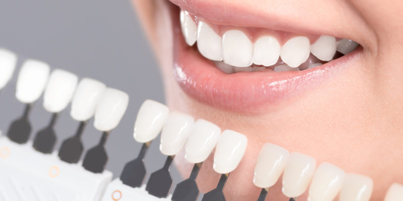 dental veneers, family dentistry of columbus, porclean veneers